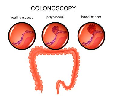 cancer_colon_polype
