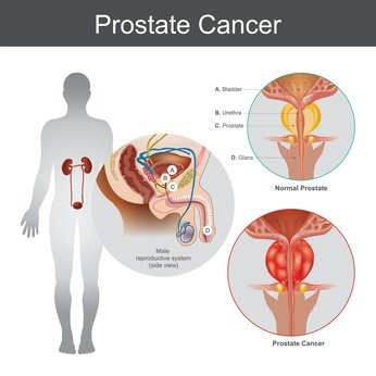 photo_cancer_prostate