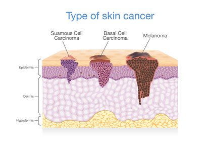 cancer de la peau sympt mes et traitements toutes les informations. Black Bedroom Furniture Sets. Home Design Ideas