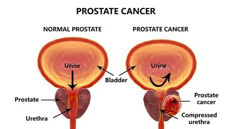 développement du cancer de la prostate et difficulté d'uriner
