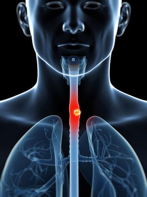 larynx_cancer_pharynx_gorge