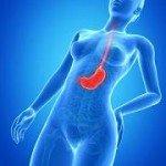© Sebastian Kaulitzki - Fotolia.com - cancer-estomac