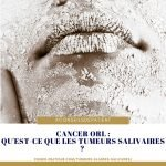 cancer-glandes-salivaires