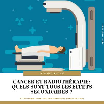radiotherapie-effet-secondaire