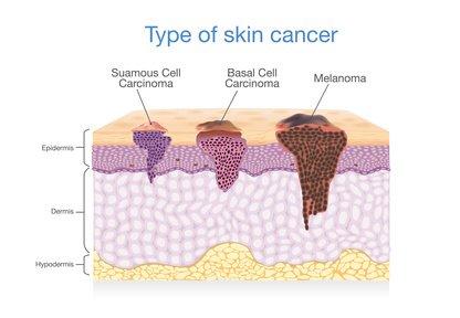 Photo des cancer de la peau et du mélanome
