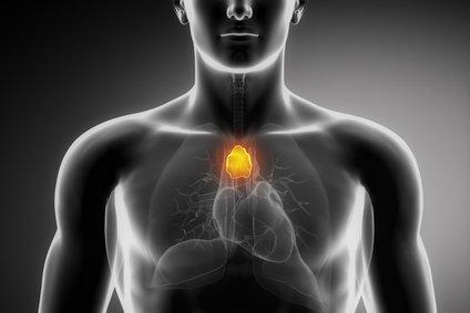 Cancer du thymus : qu'est-ce que c'est ?