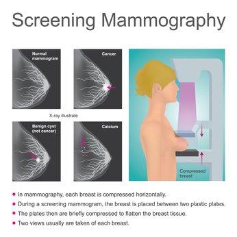 mammographie-resultat