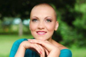 cancer-perruque