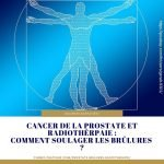 cancer-prostate-rayon-brulure