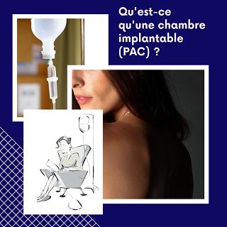 Chimiothérapie: qu'est-ce qu'un PAC (chambre implantable)?